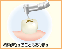 1.むし歯を削ります