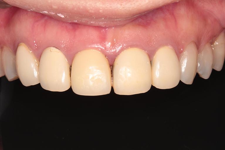 すきっ歯術前
