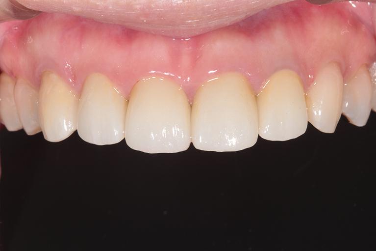 すきっ歯術後