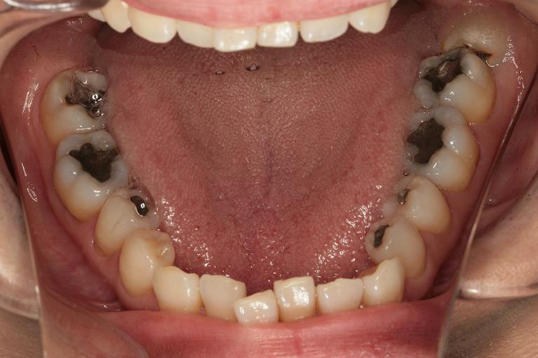 銀歯を白くBefore