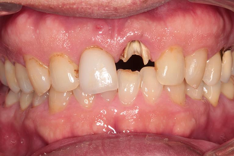 前歯が欠けてしまったBefore