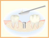 4.手術を行い、歯肉を開きます