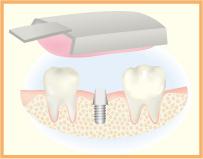 5.型をとり人工歯を制作します