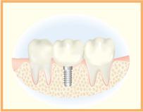 6.人工歯を装着します
