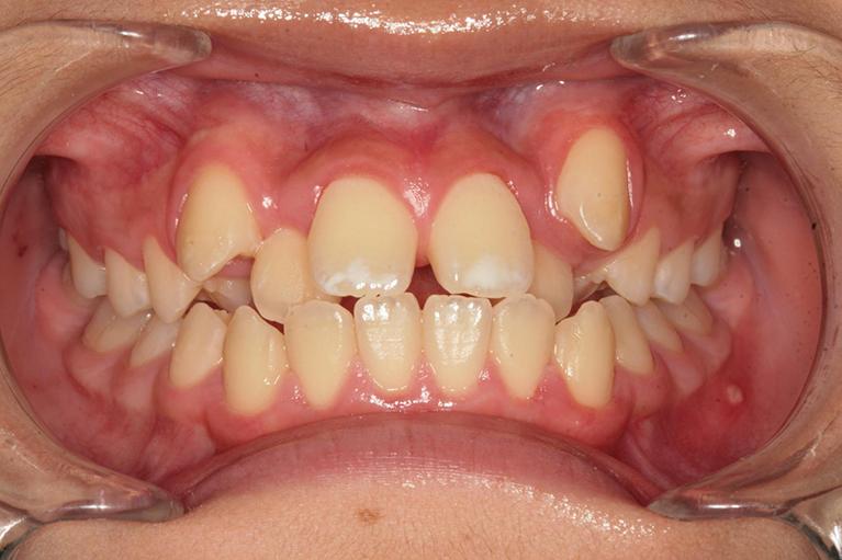 非抜歯による中学生の歯列矯正歯科治療術前