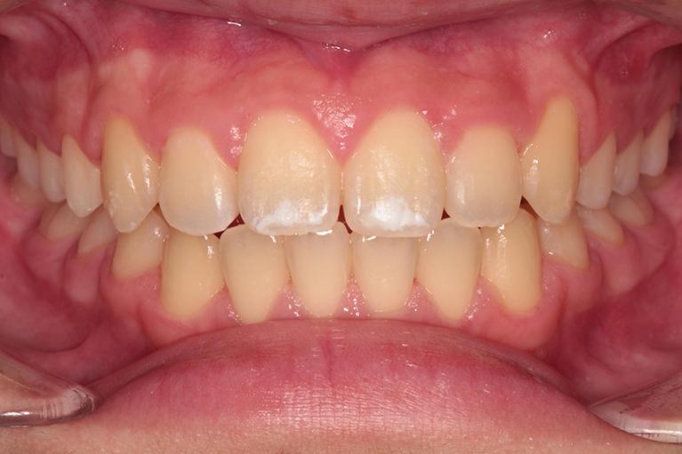 非抜歯による中学生の歯列矯正歯科治療術後