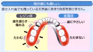 4.他の健康な歯に過度な負担を掛けない