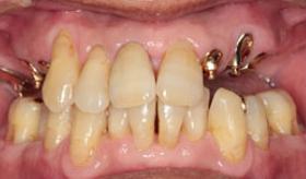 入れ歯作りのプロフェッショナル-歯科技工士①Before