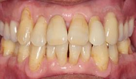 入れ歯作りのプロフェッショナル-歯科技工士①After