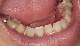 入れ歯作りのプロフェッショナル-歯科技工士②After
