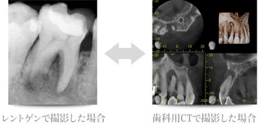 レントゲンで撮影と歯科用CTで撮影の比較