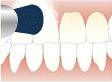 歯のクリーニング自宅での使用方法の説明