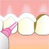 専用のチップを使って、歯と歯の間の汚れをていねいにとります