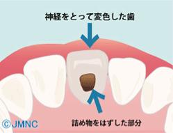 神経をとって変色した歯詰め物をはずした部分