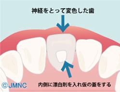 神経をとって変色した歯内側に漂白剤を入れ仮の蓋をする