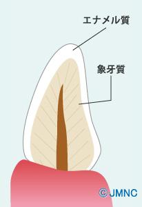 エナメル質象牙質①