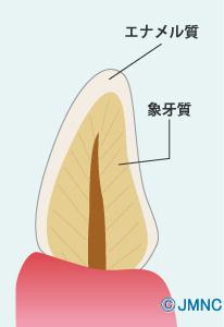 エナメル質象牙質②