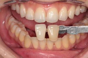ホワイトニング|江東区・綿糸町の歯科・歯医者