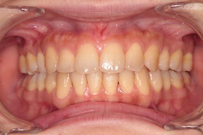 歯の黄ばみが気になっていました。Before